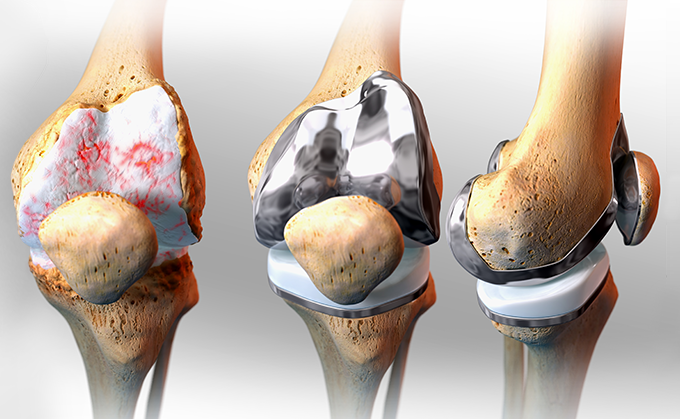 knee replacement 1